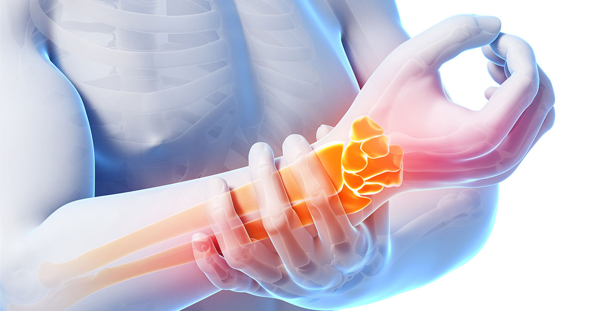Hernando, Horn Lake & Olive Branch natural carpal tunnel treatment